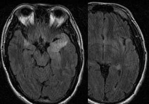 ウィルス性辺縁系脳炎(主にHSV) 診断